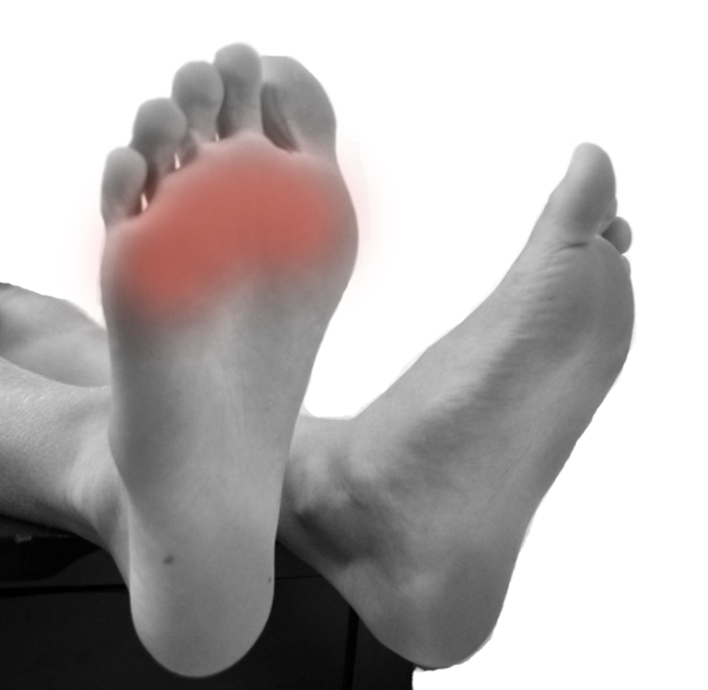 Ball Of Foot Pain Footpoint Podiatry